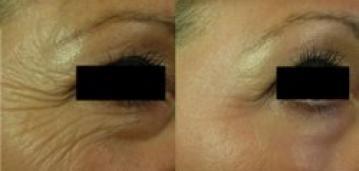 Résultats laser visage